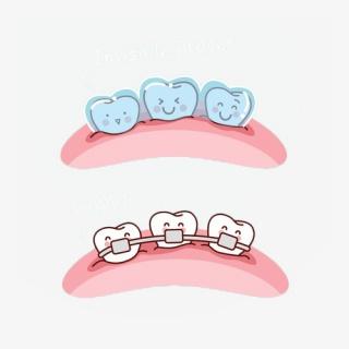 卡通可爱矫正牙齿两种牙套插画免抠